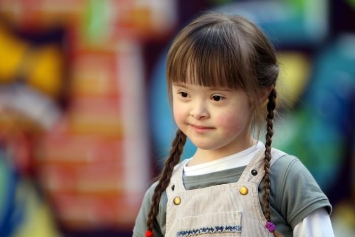 Девочка с синдромом Дауна