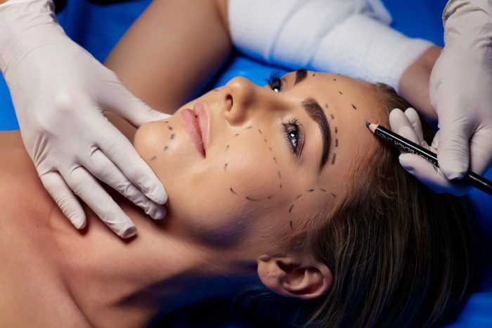 женщине в хирургии карандашом на лице ставят метки