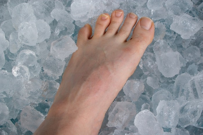 Нога на льду