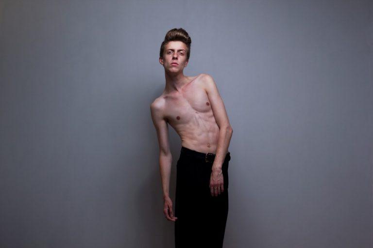 7 достоверных фактов о мужской анорексии