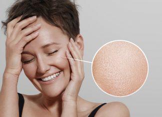 9 полезных советов по уходу за жирной кожей лица