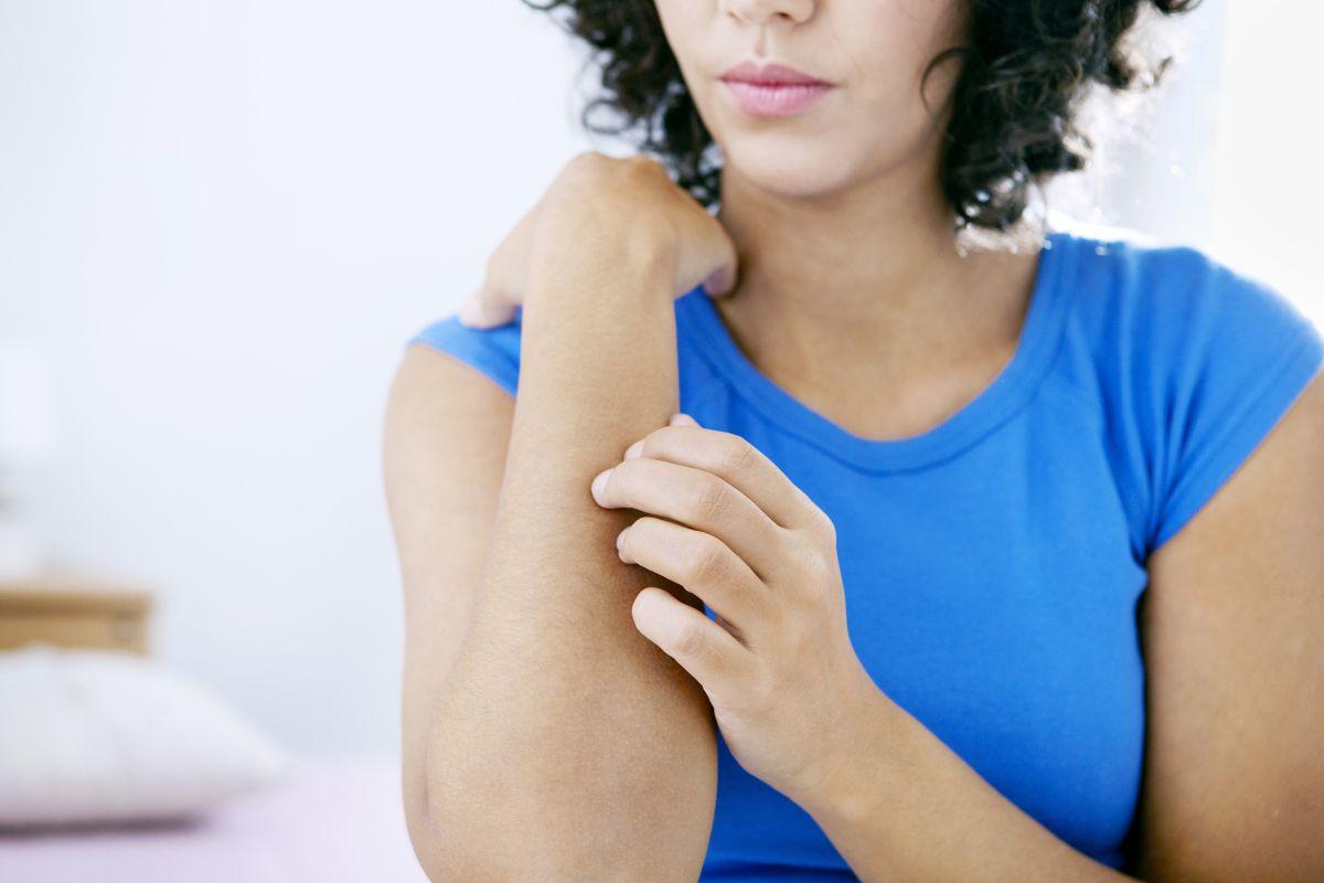 7 натуральных средств от зуда кожи