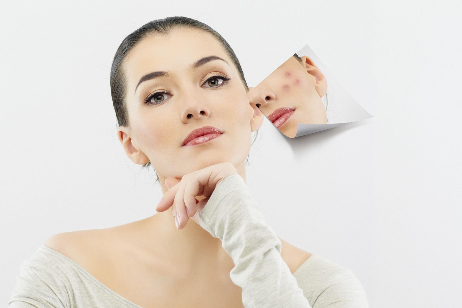 6 шагов по избавлению от прыщей на лице и теле