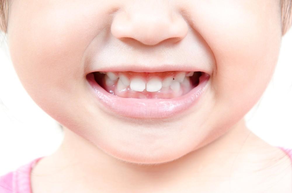 Если же пустить уход за молочными зубами «на самотек», даже коренные зубы у малыша могут вырасти пораженные кариесом.