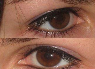 татуаж глаз последствия